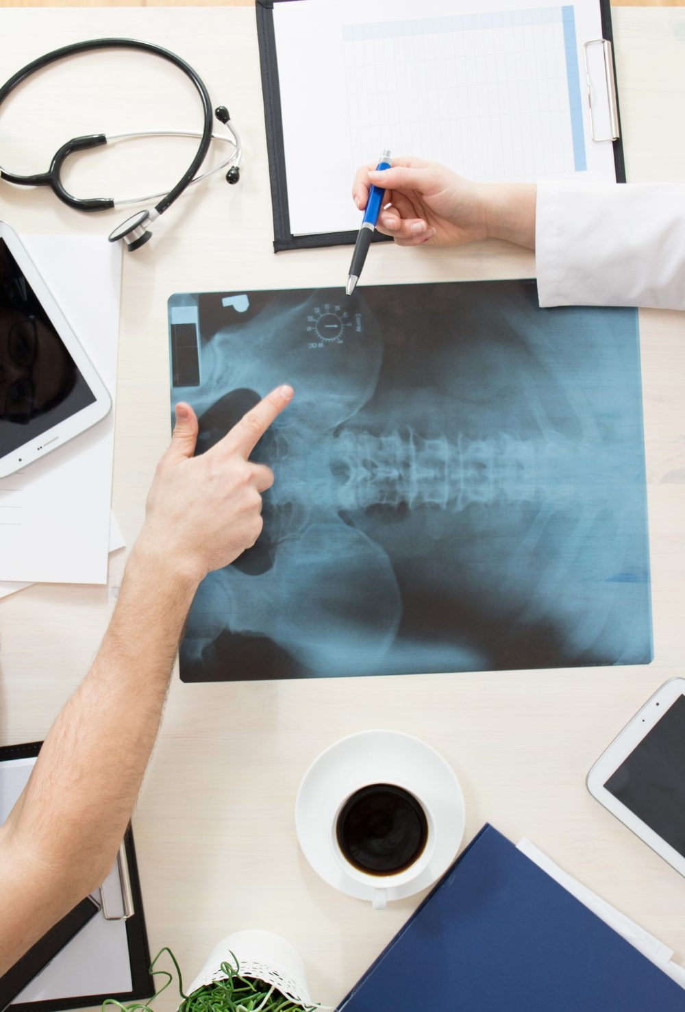 spinal x-ray for back pain relief